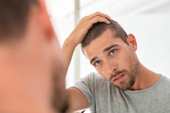 Губење на косата кај млади мажи