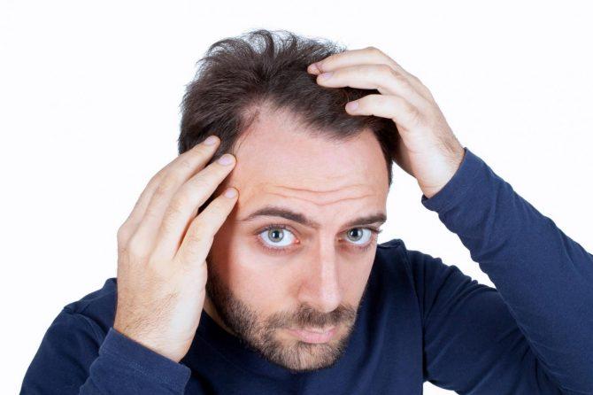 Фронтално опаѓање на косата кај мажи