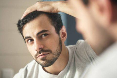 АНДРОГЕНА АЛОПЕЦИЈА – МАЖИ - 101 Hair Clinic