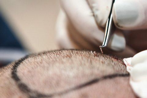 ТРАНСПЛАНТАЦИЈА НА КОСА - 101 Hair Clinic