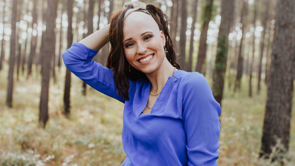 Алопеција тоталис – што кога целата коса ќе опадне?