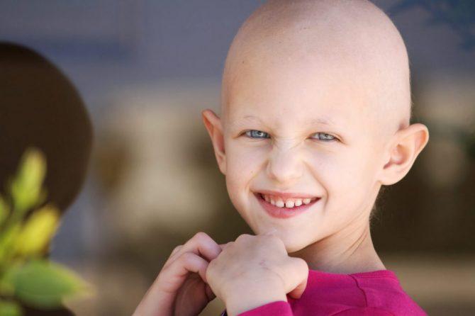 Опаѓање на коса кај деца – сè што треба да знаете